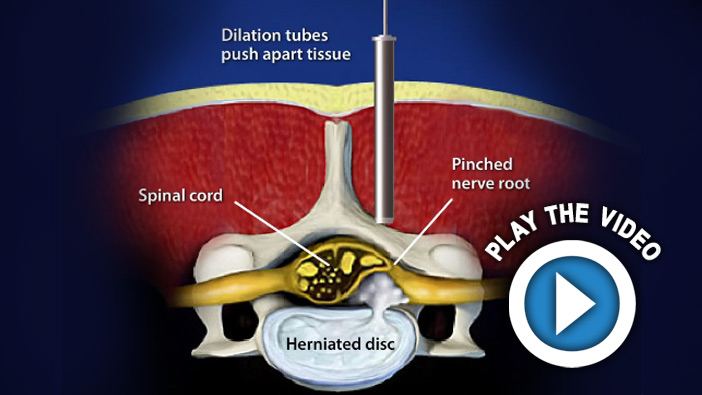 Endoscopic-Assisted Lumbar Interbody Fusion (Transforaminal)