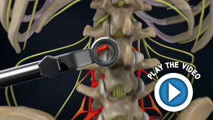 Minimally-Invasive TLIF (Transforaminal Lumbar Interbody Fusion)
