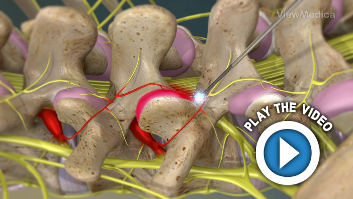 Radiofrequency Neurotomy of the Lumbar Facets
